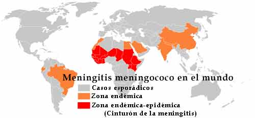 que es la infeccion meningococica